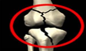 با این روش پوکی استخوان را کاهش دهید