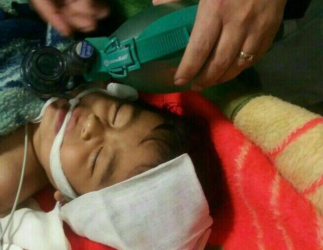 کودک ۱۸ ماهه غرق شده در استخر احیاء قلبی ریوی شد